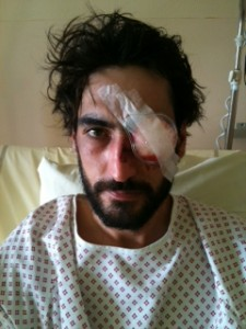 """Quentin, opposant à l'aéroport ayant perdu son oeil suite à tir tendu de grenade"""""""